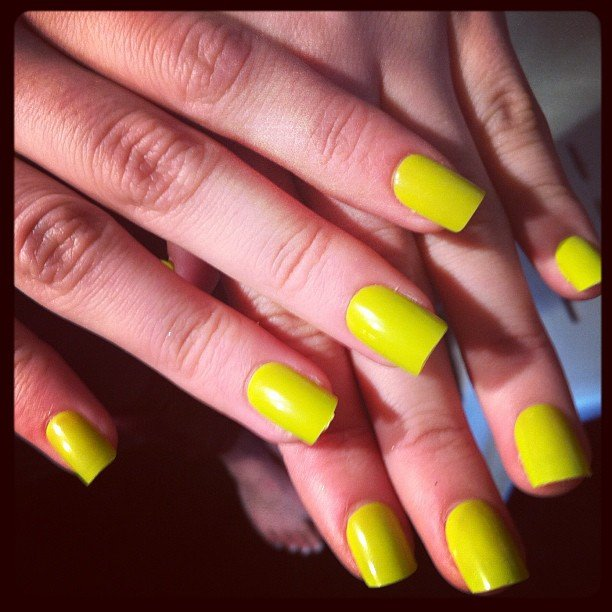 Manning Cartell's acid yellow nails.