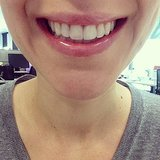 Before and After Invisalign Results