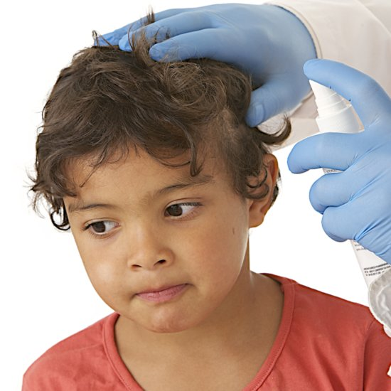 Lice Removal Techniques