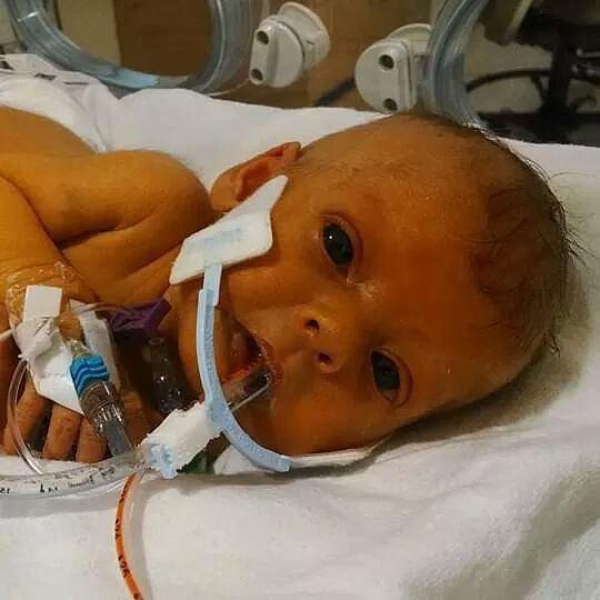 The original photo of baby Sophia.  Source: Reddit user steffel07 via Imgur