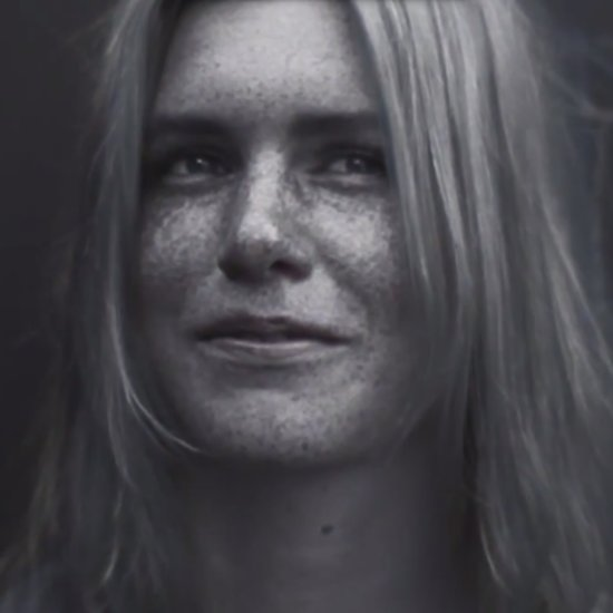 Video Of Women Without Sunscreen Under Ultraviolet Light