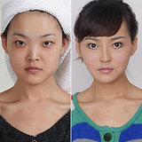 Extreme Plastic Surgery Causes Passport Confusion