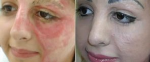 Watch a Tattoo Artist Change a Burn Victim's Life With Permanent Makeup
