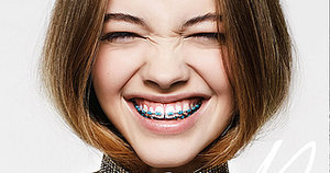 Spring's Most Unexpected New Trend: Orthodontia