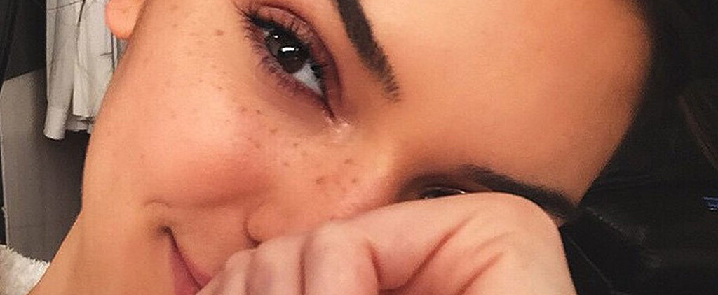 Kendall Jenner and 18 More Gorgeous Girls Who Embrace Their Freckles
