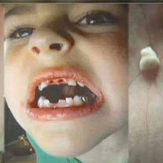 Florida Dentist Abusing Child Patients