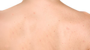 How To Banish Backne And Chestne–That's Chest Acne, FYI–Before Summer