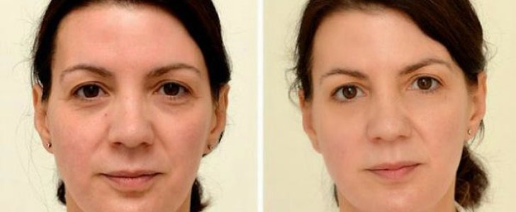 This Is How Your Face Changes After 30 Days of Drinking Water