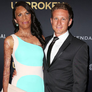 Turia Pitt Is Engaged to Michael Hoskin