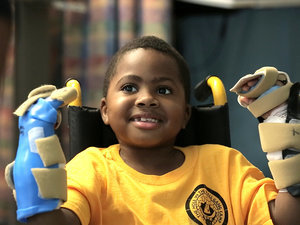 Meet the First Kid in the World to Receive a Double Hand Transplant: 'I Want to Swing on Monkey Bars!'
