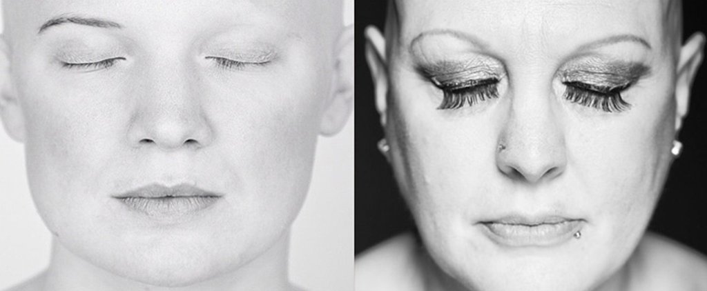 This Powerful Photo Project Is Capturing the Beauty in Baldness