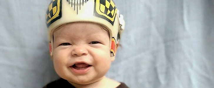 When His Newborn Son Needed to Wear a Helmet Every Day For a Year, This Dad Got Creative
