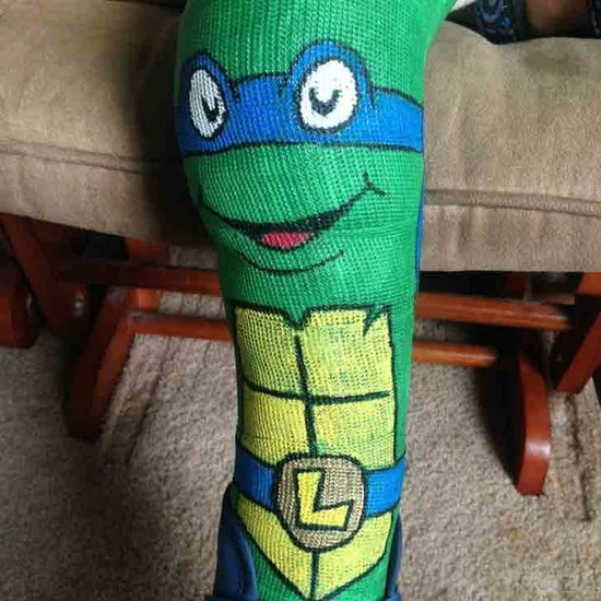 Dad Draws Teenage Mutant Ninja Turtle on Son's Cast