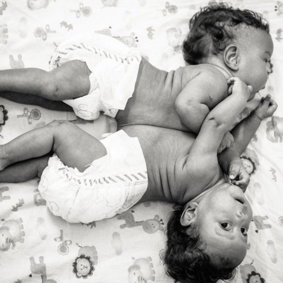 Conjoined Twins Are Separated and Photographed