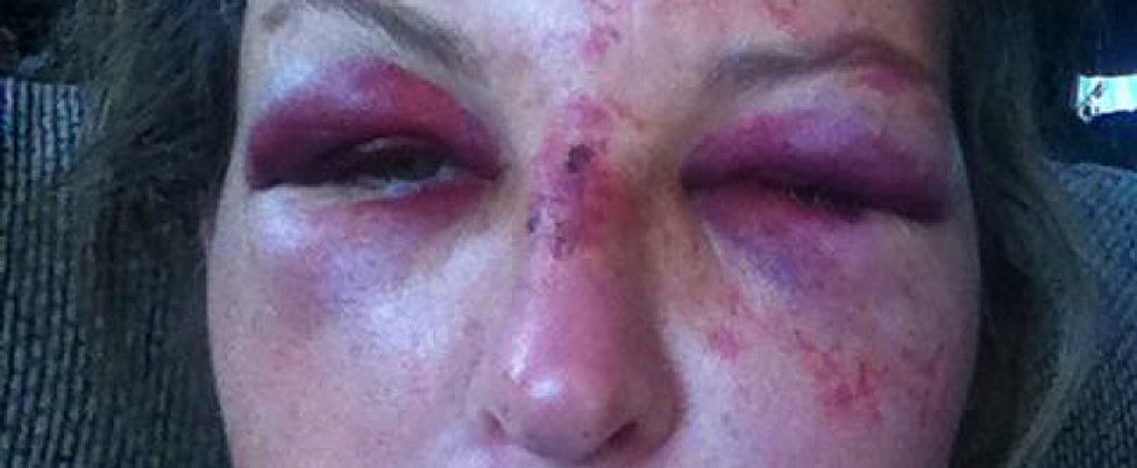 This Is Tragic: A Day Care Owner Was Assaulted Protecting Children From Their Drunk Dad