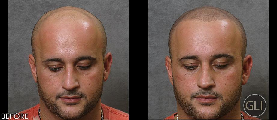 Hair tattoos for baldness popsugar beauty for Tattoo bald spot