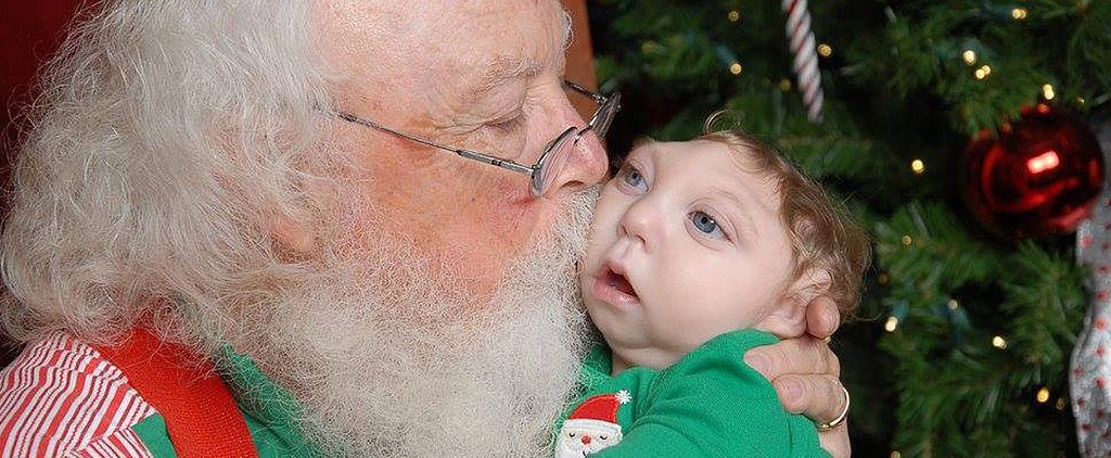 Little Boy With Missing Skull Who Has Been Defying Odds Gets Adorable Kiss From Santa