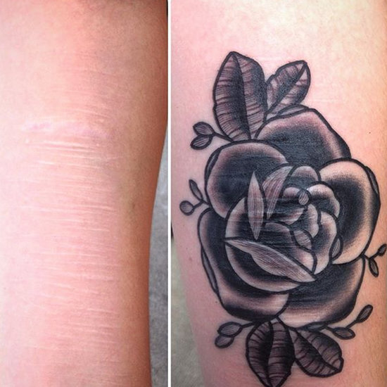 Tattoo Artist Helps People Cover Scars With Tattoos (Video)