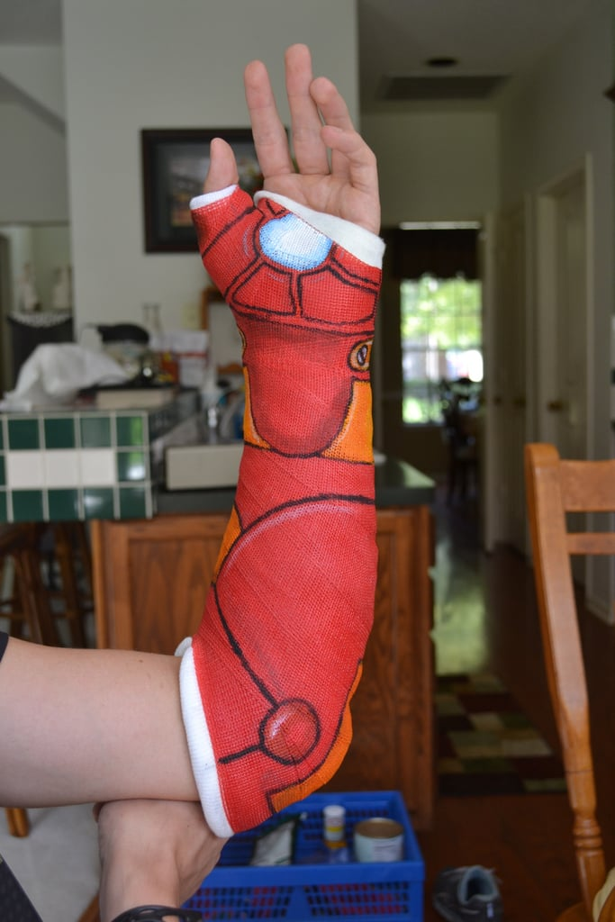 """""""Dealing with wearing a cast, you're doing it goddamn right."""" Source: Imgur user steve699"""