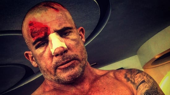Dominic Purcell Breaks His Nose on 'Prison Break' Set After Bar Falls on His Head -- See the Gruesome Pics