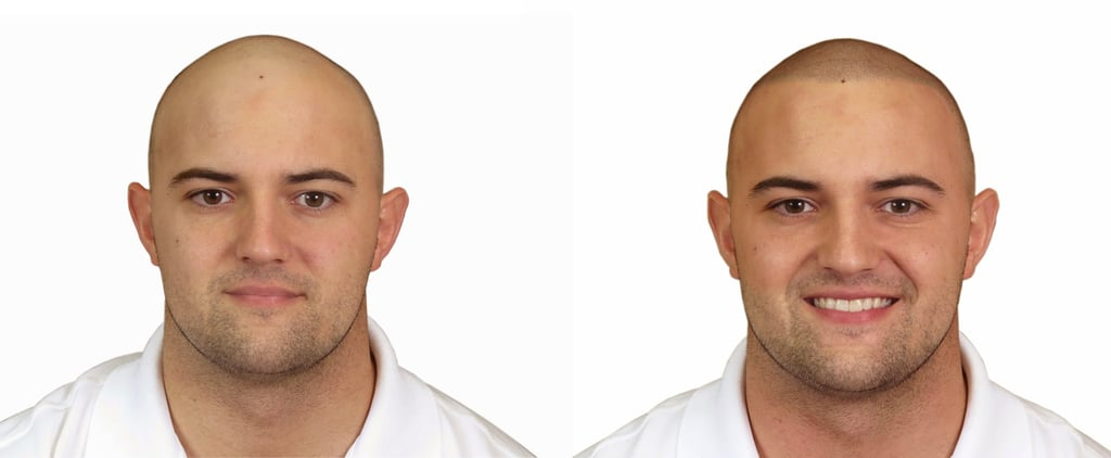 How Scalp Tattoos Are Empowering Men With Hair Loss