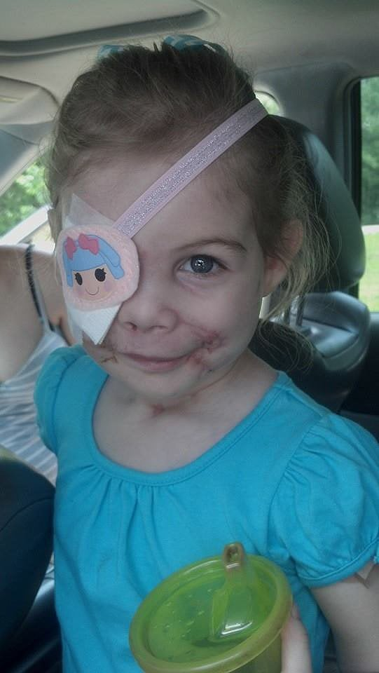 Did This Girl's Scars Get Her Kicked Out of KFC?