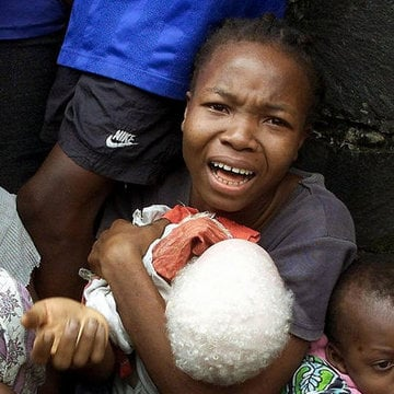 Pale and Persecuted: Albinos Hunted, Terrorized in Tanzania