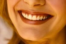 Wedding Prep:  Get Your Smile Ready