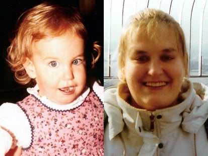 Video of Kate Kane on Good Morning America Discussing Her Struggle With Prader-Willi Syndrome