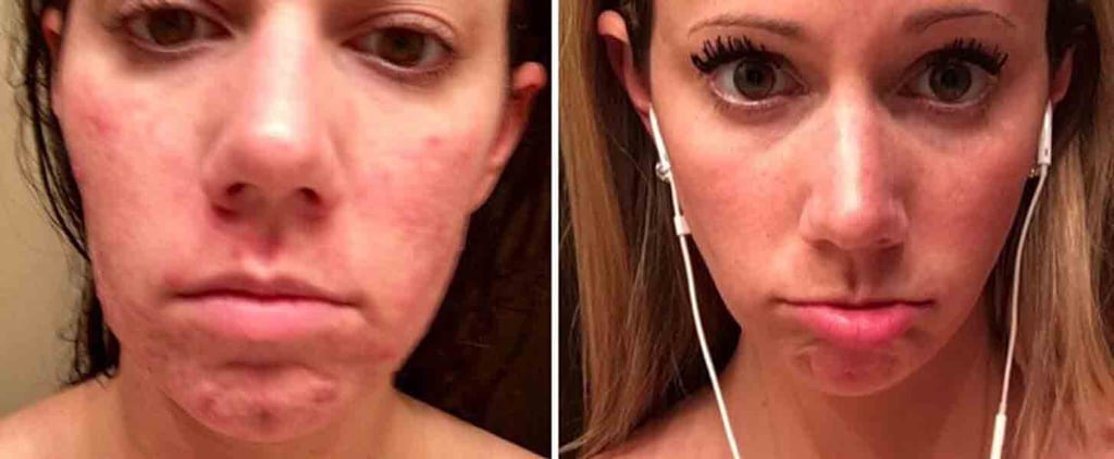 You Have to See How Birth Control Made This Woman's Acne Disappear