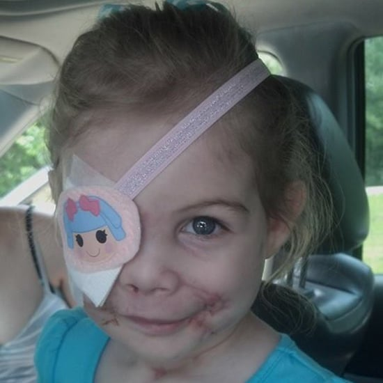 KFC Kicks Out 3-Year-Old For Facial Scars