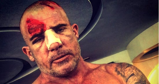 Dominic Purcell Updates Fans After Scary Injury on 'Prison Break' Set