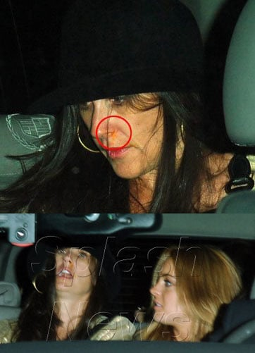 What's Up Demi's Nose?