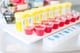 Blood and Urine Samples