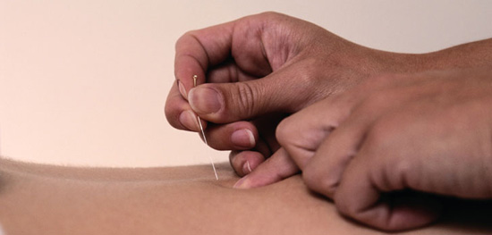 Acupuncture Your Way to Pregnancy
