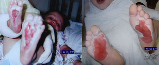 Who Is Responsible for 2nd Degree Burns on Kids' Feet?