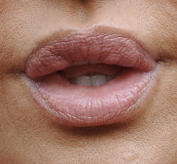Photo of Trout Pout, Leslie Ash, Saffron Burrows, Brittany Murphy. Beauty Blog Website Plastic Surgery Lip Enhancement