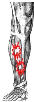 How Can I Prevent Shin Splints?