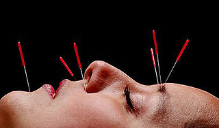 A Little Bit About The Benefits of Facial Acupuncture