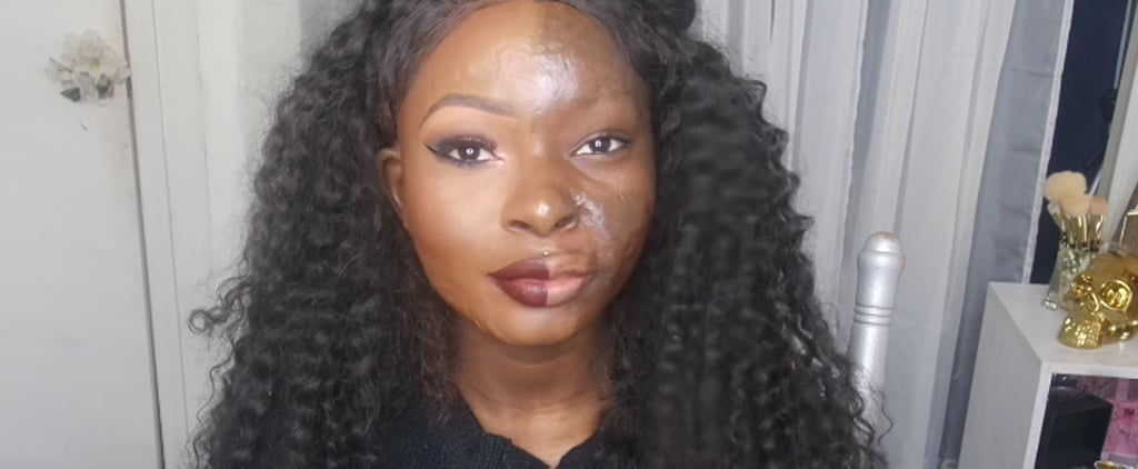 Burn Survivor Shows the Power of Makeup With 1 Incredible Transformation
