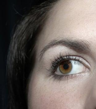 eye twitch